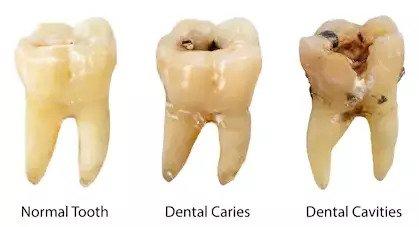 dental surgeon in delhi